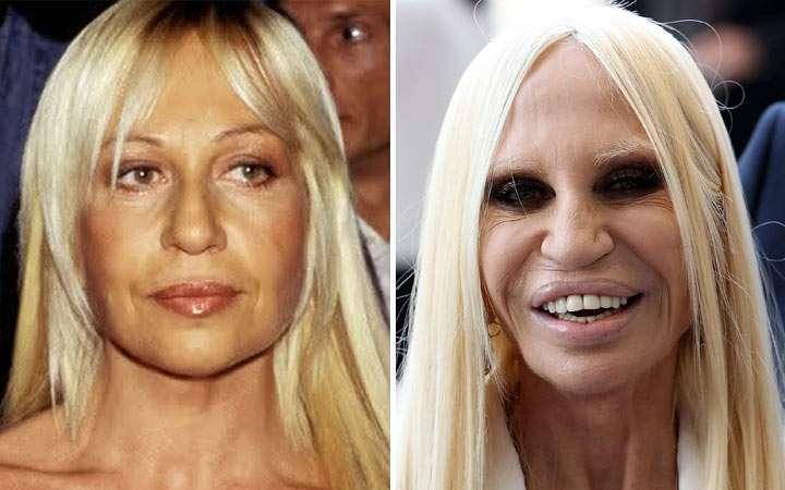 Chirurgia estetica - Donatella versace prima e dopo