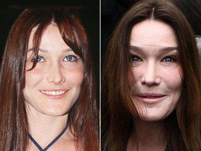 Chirurgia estetica - Carla Bruni prima e dopo