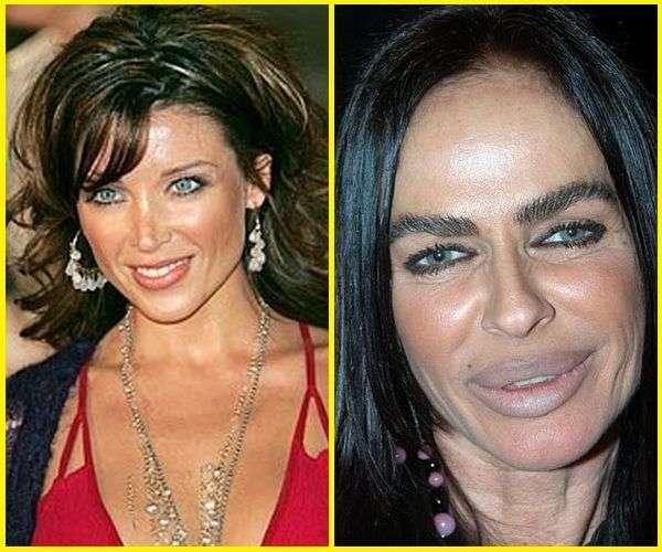Chirurgia estetica - Michaela Romanini prima e dopo